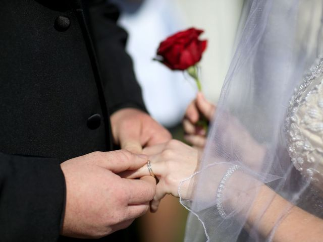 Married people more likely to bounce back after surgery, researchers say