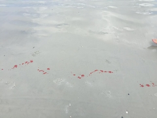 13-year-old boy suffers shark bite in Florida