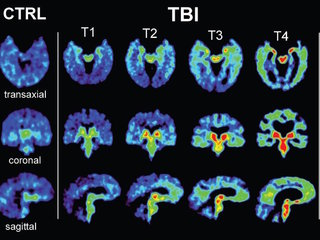 STUDY: 99% of tested NFL players had CTE