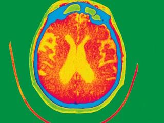 Have scientists found Alzheimer's game-changer?