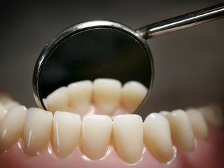 Here's how to get your teeth cleaned for free