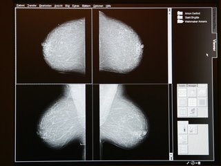 New gene variants for breast cancer discovered