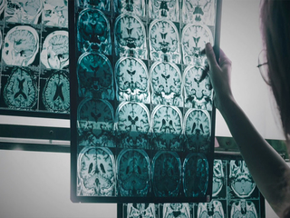 Early detection changing Alzheimer's diagnosis