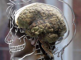 The basics of Alzheimer's